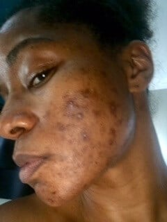 Chemical Peel, Dark Skin Tone Before