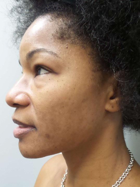 Chemical Peel, Dark Skin Tone After